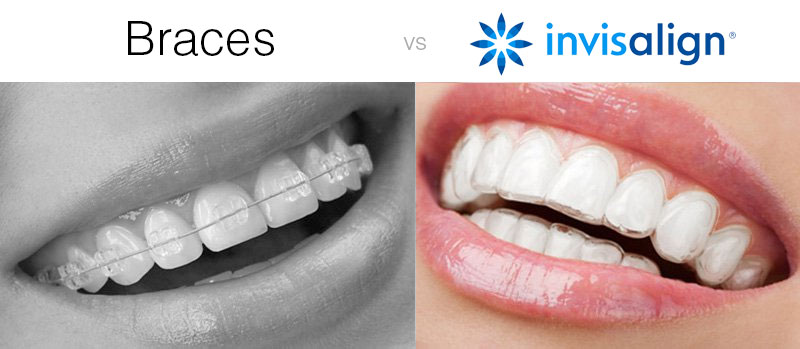The 3-Minute Rule for Braces Alternative